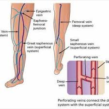 varices-images